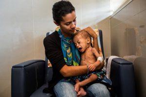 La desnutrición en Venezuela no se soluciona con una bolsa CLAP 4