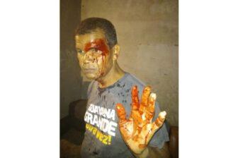 Líder vecinal fue agredido por colectivos armados enBolívar 1
