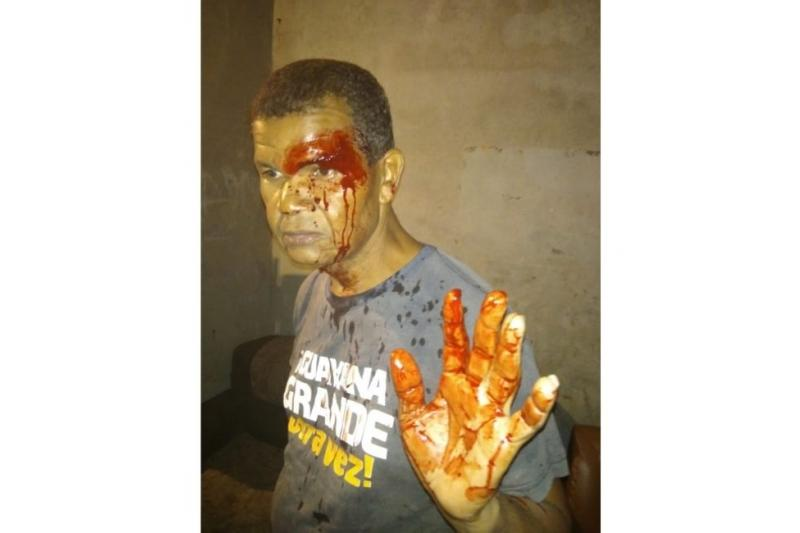 Líder vecinal fue agredido por colectivos armados enBolívar 27