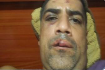 Hombre fue agredido por la GNB mientras hacía una cola por gasolina 1