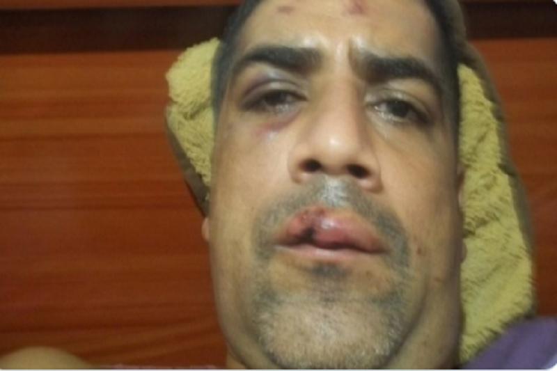 Hombre fue agredido por la GNB mientras hacía una cola por gasolina 32