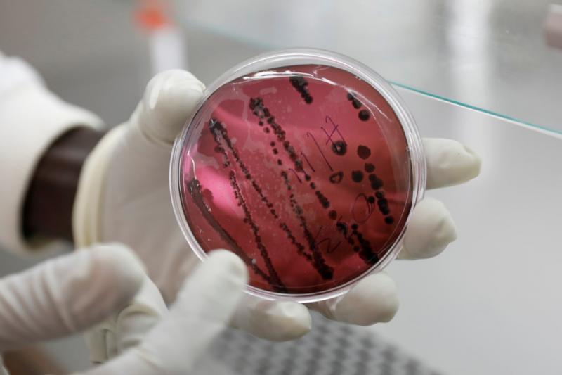 Un virus similar al Ébola enciende la alarma en Bolivia 3