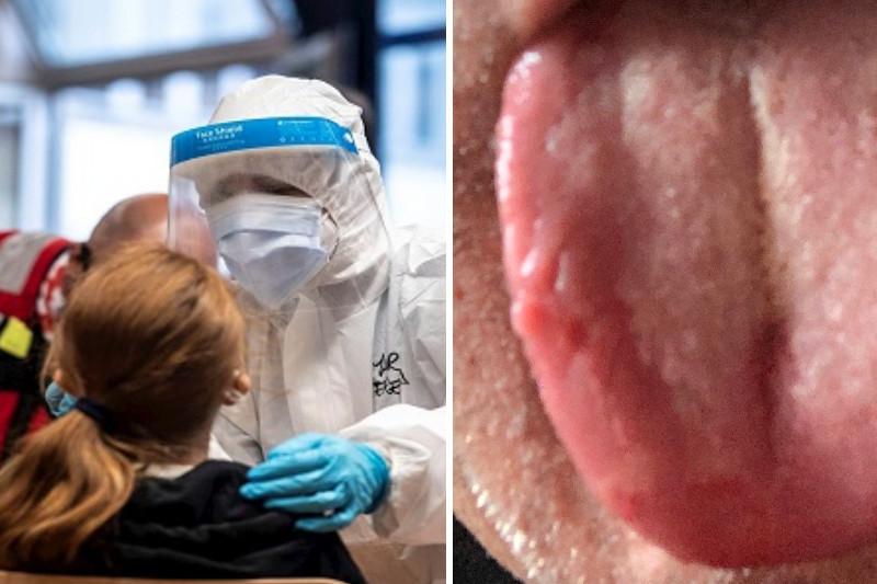 Nuevos síntomas, cepas y tratamientos del covid surgen en el mundo 28