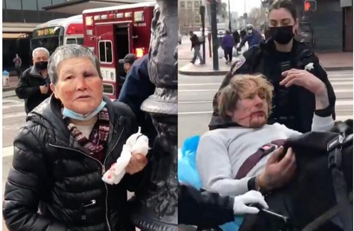 Abuela envía al hospital a hombre que la agredió en la calle (Video) 3