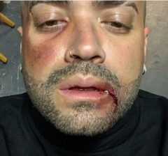 Nacho publicó foto tras una aparente pelea a puños (Foto) 2