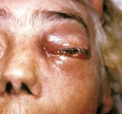 """Así luce la infección del letal """"hongo negro"""" que está atacando a los pacientes con Covid-19 (Imágenes sensibles) 3"""