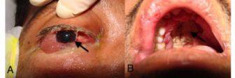 """Así luce la infección del letal """"hongo negro"""" que está atacando a los pacientes con Covid-19 (Imágenes sensibles) 2"""